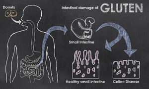 Celiac disease and gluten sensitivity are NOT one and the same.